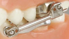 herbst appliance in orthodontics